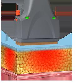 Como actua el tratamiento del Slimming Laser